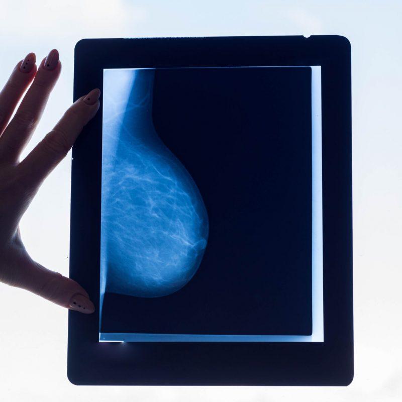 Breast shot without pathology against white light